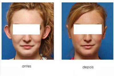 cirurgia de orelha de abano