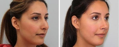 cirurgia no nariz rinoplastia 490x193 Cirurgia para nariz grande Rinoplastia antes e depois