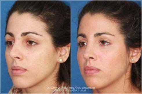 fotos de rinoplastia antes de depois diminuir o nariz