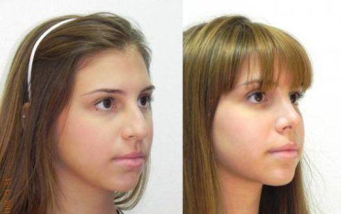 fotos de rinoplastia antes de depois em adolescente