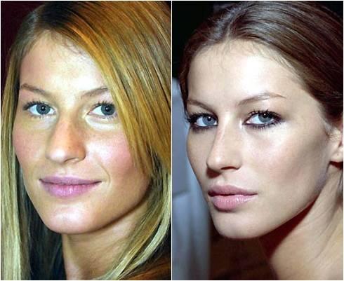 Cirurgia para nariz grande Rinoplastia antes e depois