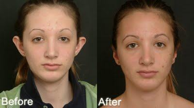 orelha de abano cirurgia antes e depois