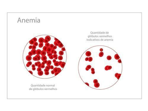Remédios e Alimentos para Anemia, Tratamento saudável