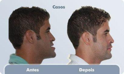 antes e depois cirurgia para diminuir o queixo