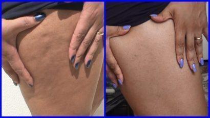 antes e depois com cremes redutores de celulites
