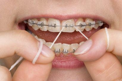 como usar fio dental com aparelho fixo 410x273 Dica: Como usar Fio Dental com Aparelho fixo