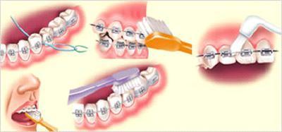 higienizacao e fio dental pra aparelho fixo Dica: Como usar Fio Dental com Aparelho fixo
