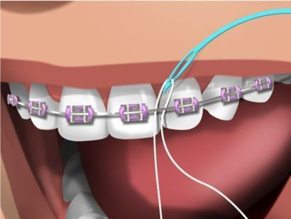passador para usar fio dental com aparelho fixo