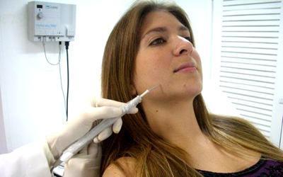 tratamento eletrocoagulacao verrugas