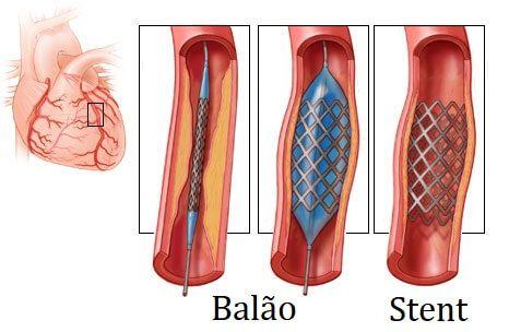 Cirurgia de Angioplastia Entenda Cada Ponto