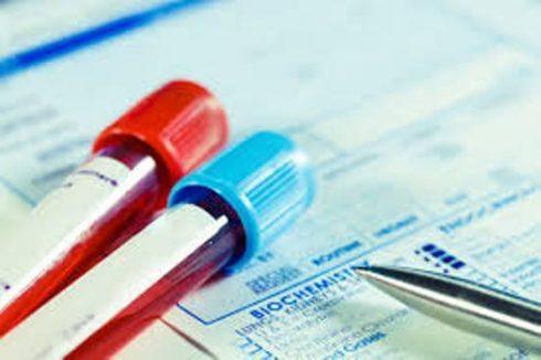 exame ureia alta 490x326 Ureia Alta Tratamento para Baixar, Remédio