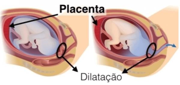 Fases do Trabalho de Parto, O processo de Nascimento do Bebê