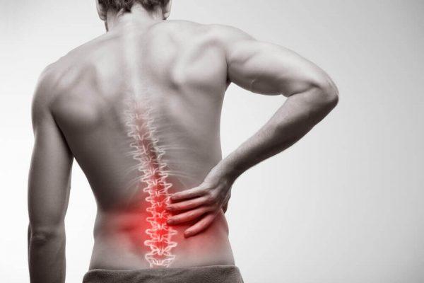 Antiinflamatório para dor na Coluna nas costas (remédio)