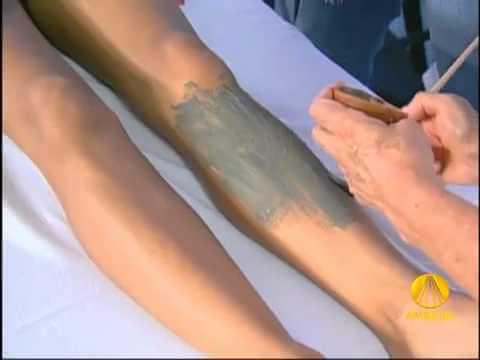 Tratamento Argila Verde para Varizes na Perna, como fazer