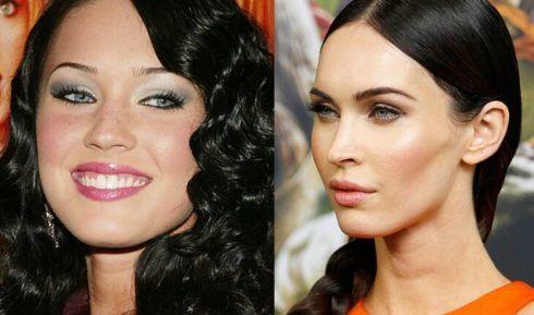 bichectomia antes e depois 3 490x289 Fotos Bichectomia antes e depois entenda a Cirurgia