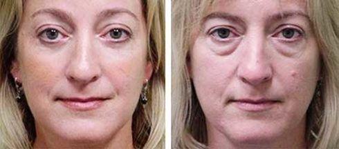 blefaroplastia antes e depois 1 490x216 Blefaroplastia Antes e depois Cirurgia rejuvenescedora