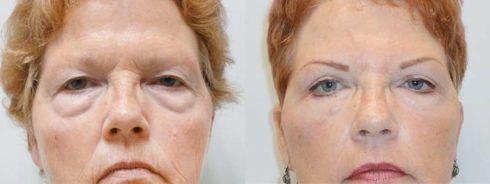 blefaroplastia antes e depois 2 490x184 Blefaroplastia Antes e depois Cirurgia rejuvenescedora