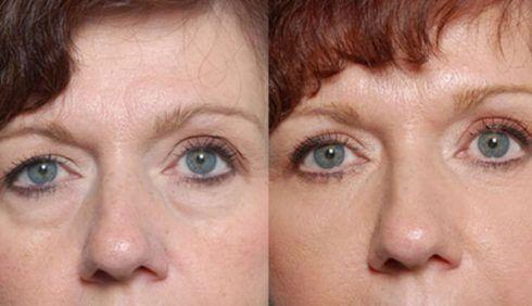 blefaroplastia antes e depois 3 490x282 Blefaroplastia Antes e depois Cirurgia rejuvenescedora