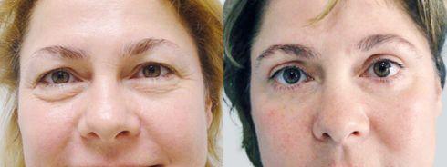 blefaroplastia antes e depois 4 490x184 Blefaroplastia Antes e depois Cirurgia rejuvenescedora