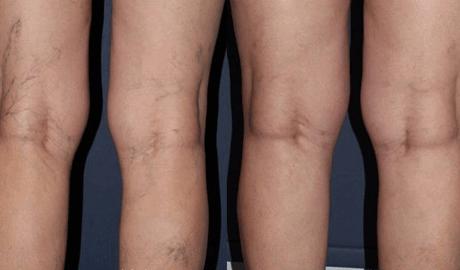 escleroterapia antes e depois Escleroterapia para Varicoses e Varizes na coxa e Perna