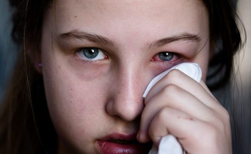 fotos de pessoas com conjuntivite 4 490x302 Fotos de Pessoas com Conjuntivite e Colírios para Tratar