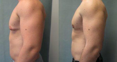 ginecomastia antes e depois 1 490x261 Cirurgia de Ginecomastia pelo SUS, Como conseguir