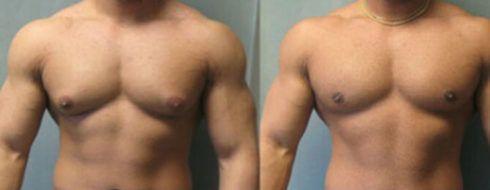 ginecomastia antes e depois 2 490x190 Cirurgia de Ginecomastia pelo SUS, Como conseguir