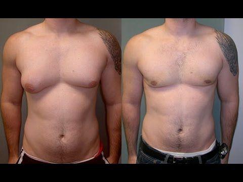 ginecomastia antes e depois 3 Cirurgia de Ginecomastia pelo SUS, Como conseguir