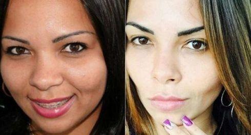 imagem 5 109 490x265 Fotos Bichectomia antes e depois entenda a Cirurgia