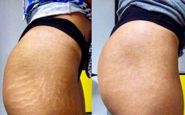 Camuflagem de Estrias e Cicatrizes Antes e depois Informações