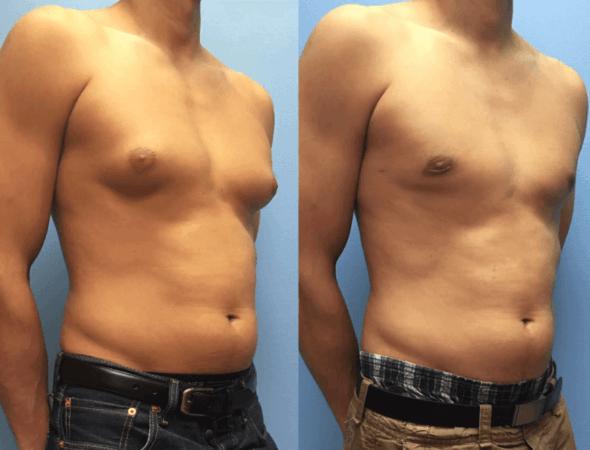 Cirurgia de Ginecomastia pelo SUS, Como conseguir