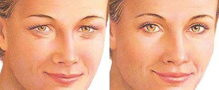Blefaroplastia Antes e depois Cirurgia rejuvenescedora