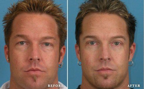 imagem 7 37 490x302 Blefaroplastia Antes e depois Cirurgia rejuvenescedora