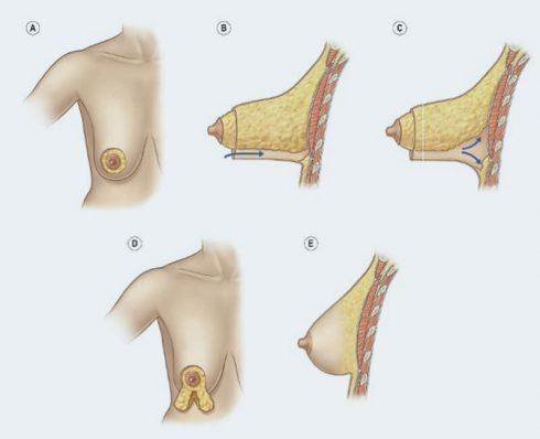 mama tuberosa 490x398 Mama Tuberosa Mamoplastia para Aumento, Conheça