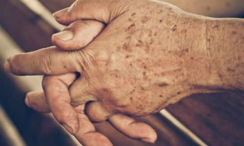 manchas senis 490x294 Pomada para Manchas Sênis de Sol e idade (Tratamento)
