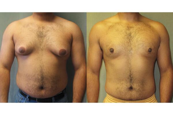 Ginecomastia sem Cirurgia com Tamoxifeno