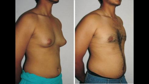 quanto custa cirurgia de ginecomastia 490x276 Quanto custa uma Cirurgia de Ginecomastia?